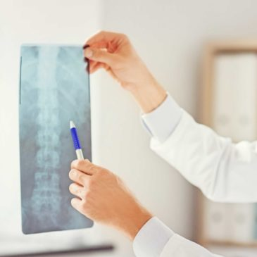 Hire A Missouri Work Comp Lawyer For Back Injuries Requiring Surgery